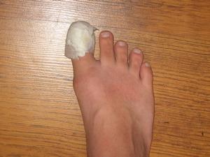 toe-cast.jpg